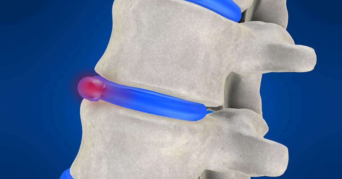 Corvallis non-surgical disc herniation treatment